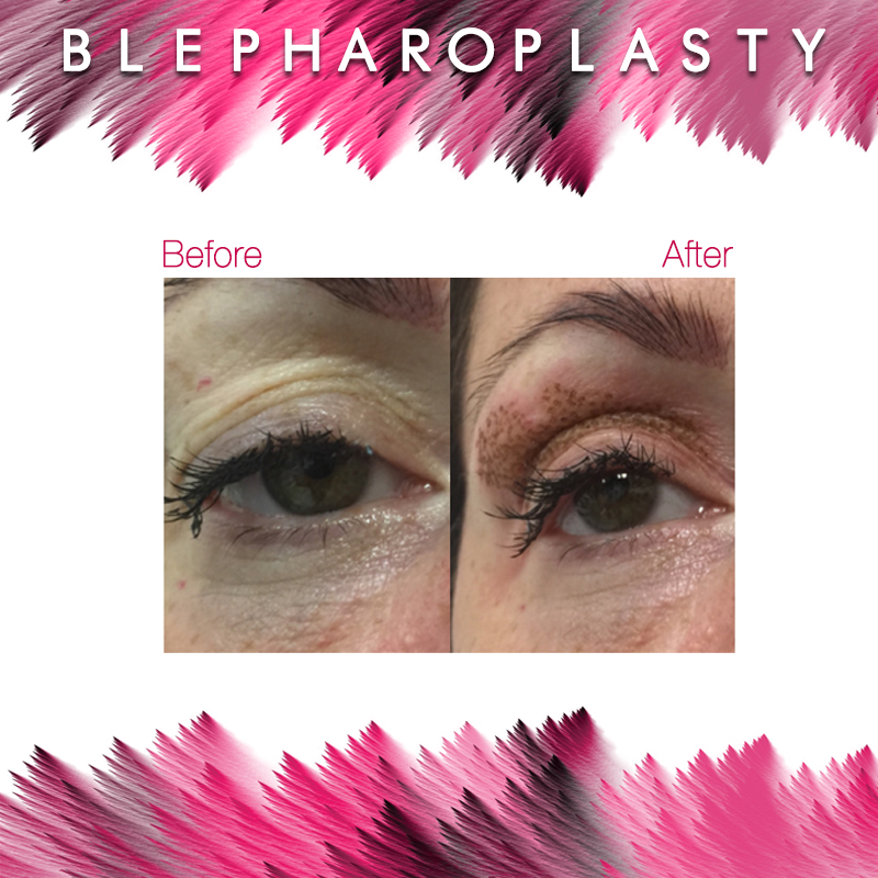 before-and-after-blepharoplasty-2